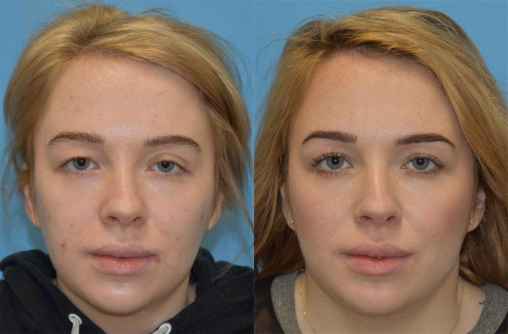 عوارض عمل جراحی زیبایی پلک (بلفاروپلاستی)