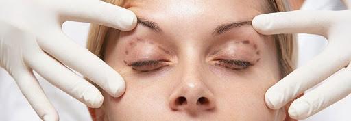 بهترین متخصص عمل جراحی زیبایی پلک (بلفاروپلاستی)