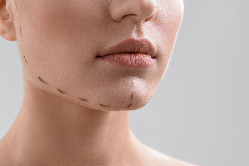 جراحی ارتوگناتیگ فک و صورت چیست؟