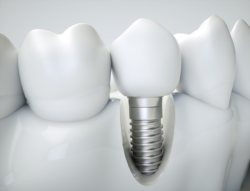 ایمپلنت دندانی فکی چیست؟