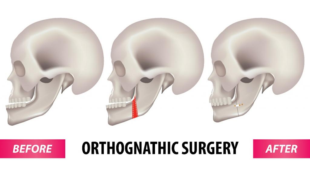 درمان اختلالات استخوان های صورت