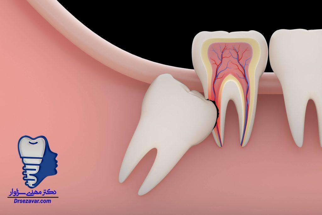 ارزان ترین دندان پزشک دندان عقل در تهران