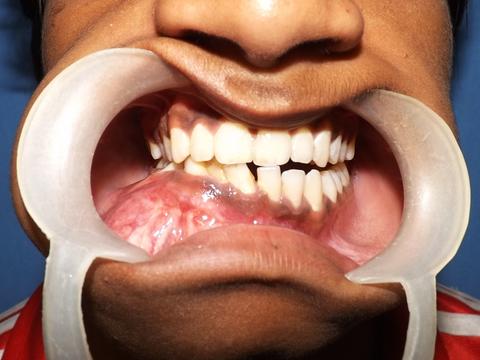 دکتر کیست دهان