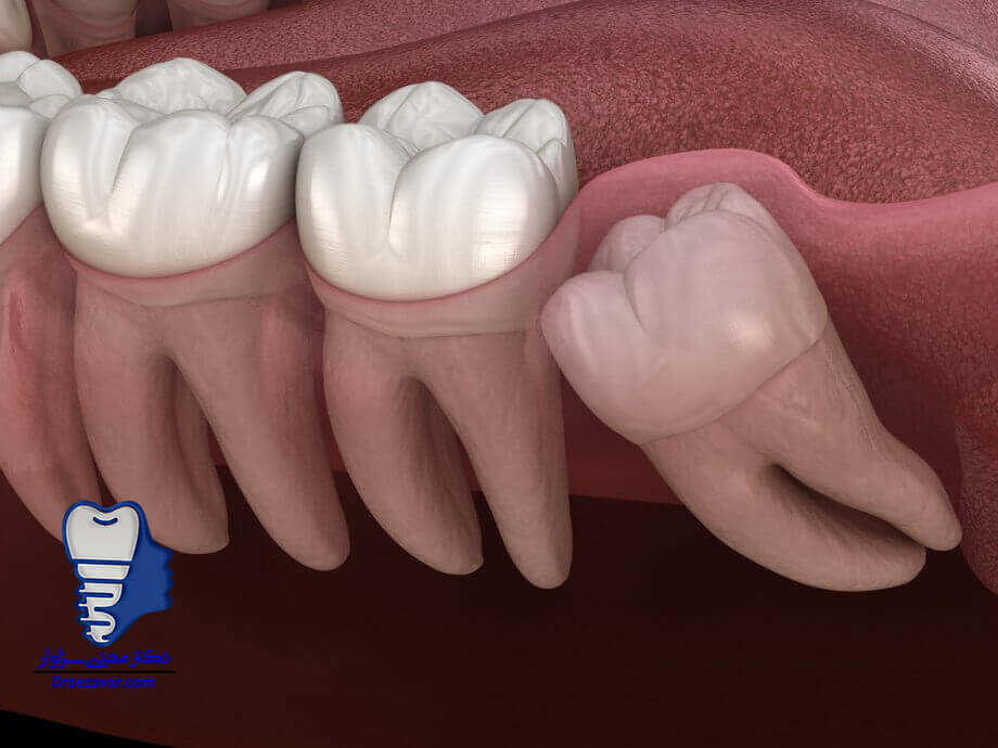 دارو برای کاهش درد دندان عقل
