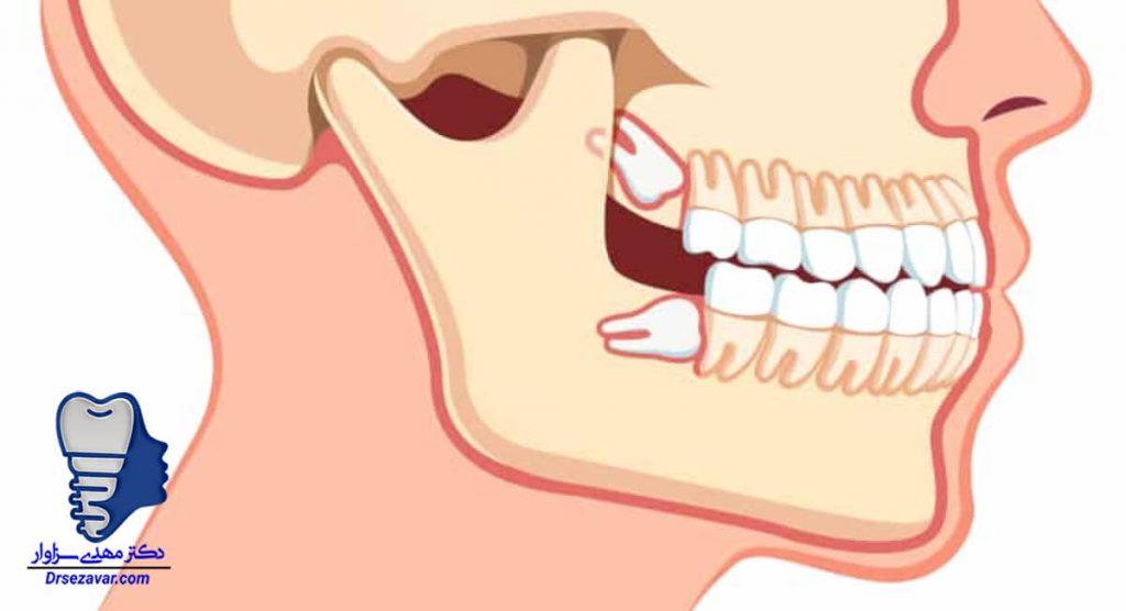 دندان عقل کج