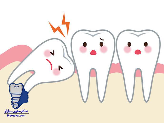 دندان عقل - نهفتگی دندان