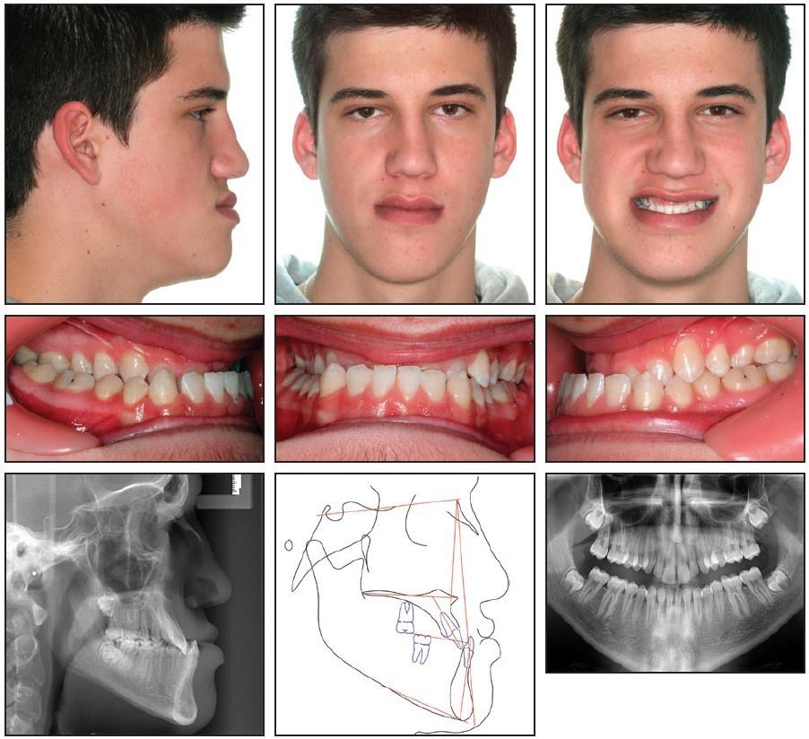 نامرتبی شدید دندان