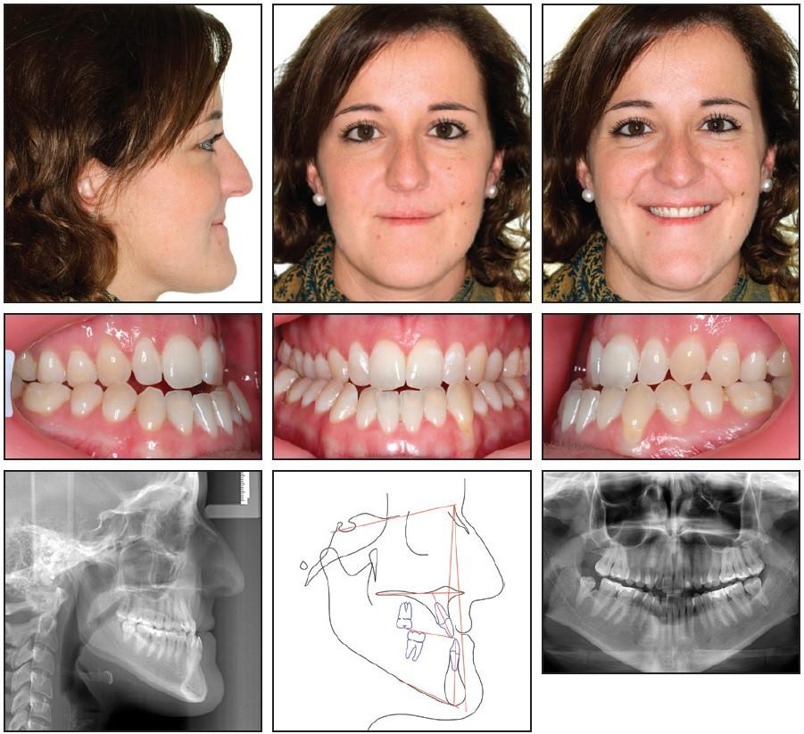 هزینه اصلاح ترتیب دندان در تهران