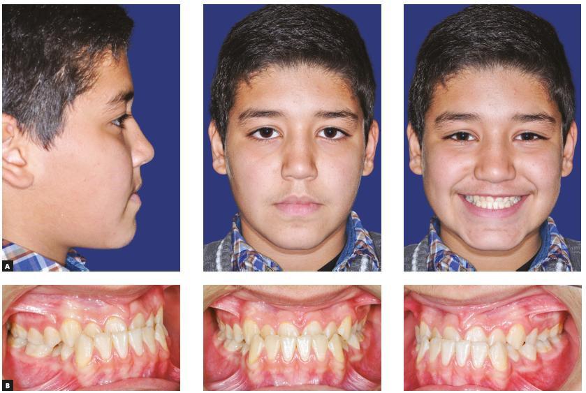 متخصص ترتیب دندان اسکلتال در تهران