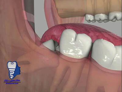 کشیدن دندان عقل خراب