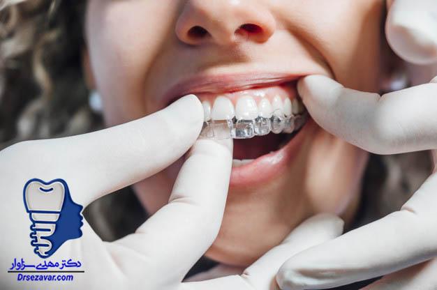 ارتودنسی متحرک با پلاکت های متحرک به عنوان فیکس کننده دندان ها