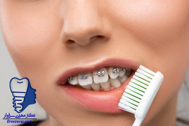 آموزش مسواک کردن دندان در زمان ارتودنسی ثابت