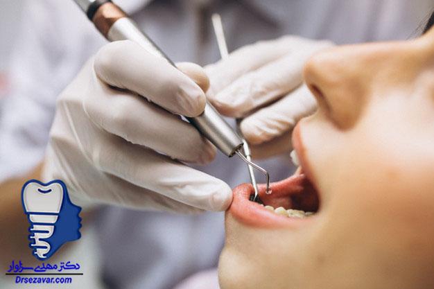 ارزان ترین ارتودنسی دندان در تهران
