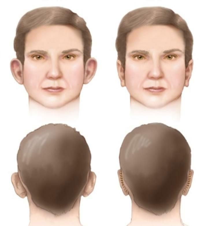 انواع عمل زیبایی گوش یا اتوپلاستی