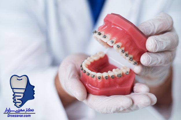 نمونه ارتودنسی دندانهای هر دو فک