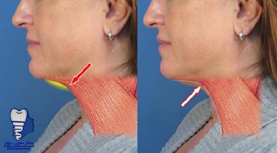 هزینه درمان لیپوساکشن غبغب و گردن