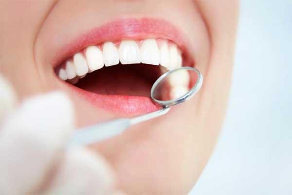مدت زمان ایمپلنت کردن دندان