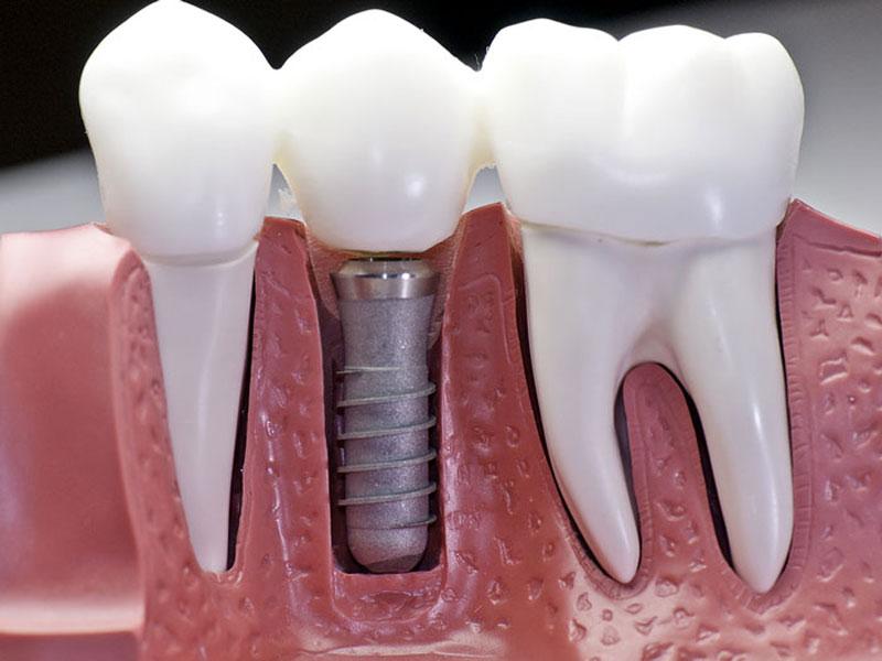 ایمپلنت دندان و عوارض آن در بلند مدت