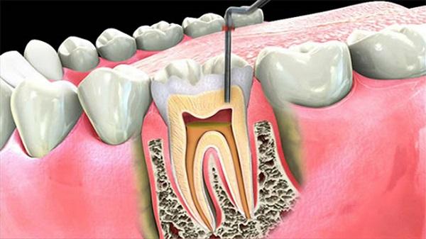 مقایسه ایمپلنت دندان و روت کانال تراپی