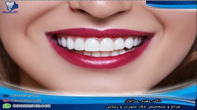 اصلاح طرح لبخند