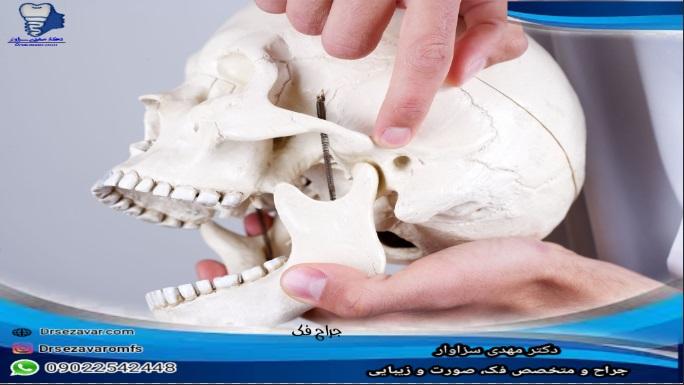 بهترین جراح در تهران