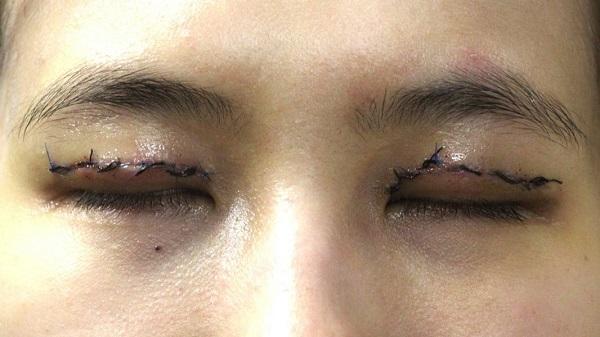 هزینه جراحی زیبایی درشت کردن چشم
