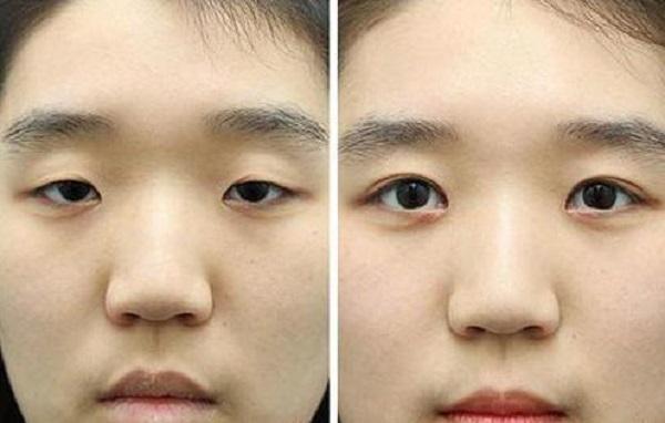 جراحی زیبایی درشت کردن چشم