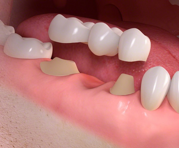 مقایسه ایمپلنت دندان و پل دندان