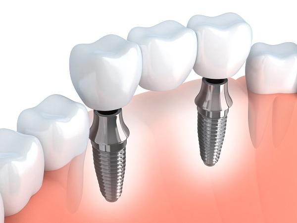 هزینه پل دندان در تهران