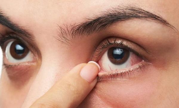 بهترین دکتر رفع گودی کاسه چشم در تهران