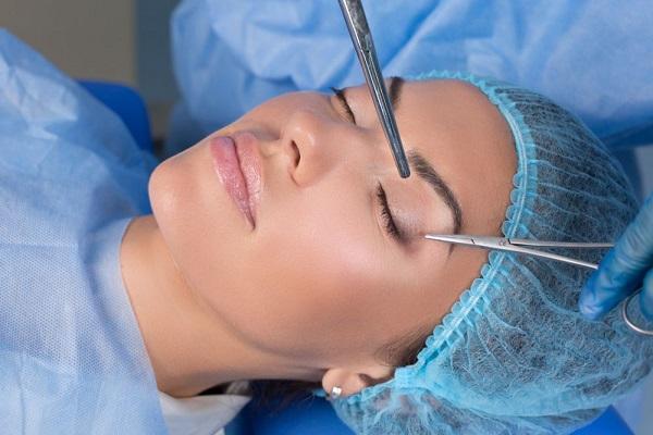 بهترین متخصص رفع گودی کاسه چشم
