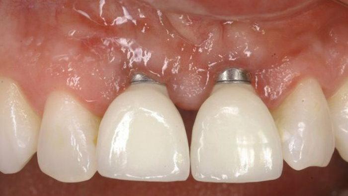آیا ایمپلنت دندان می افتد ؟
