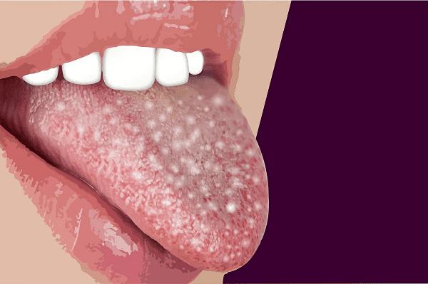 خال زبان