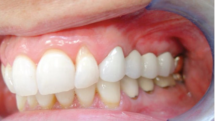 متخصص کاشت دندان ایمپلنت در تهران
