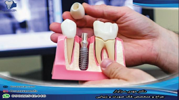 بین دندان مصنوعی و ایمپلنت کدام یک بهتر است؟