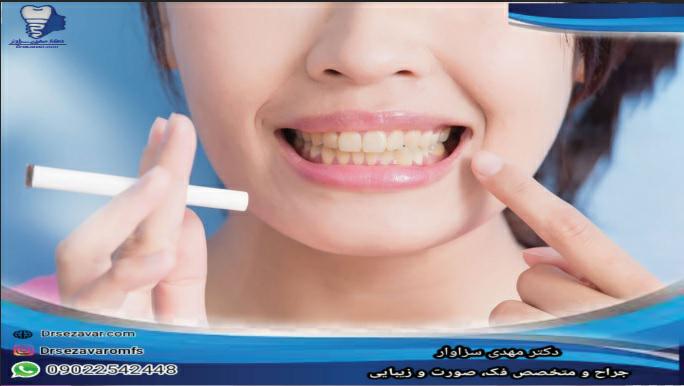 تأثیر سیگار بر ایمپلنت دندانی چیست؟