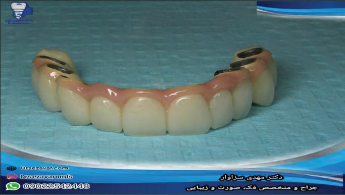 دندان مصنوعی چیست؟