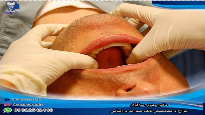 روشهای درمانی برای اسپاسم فک شدید
