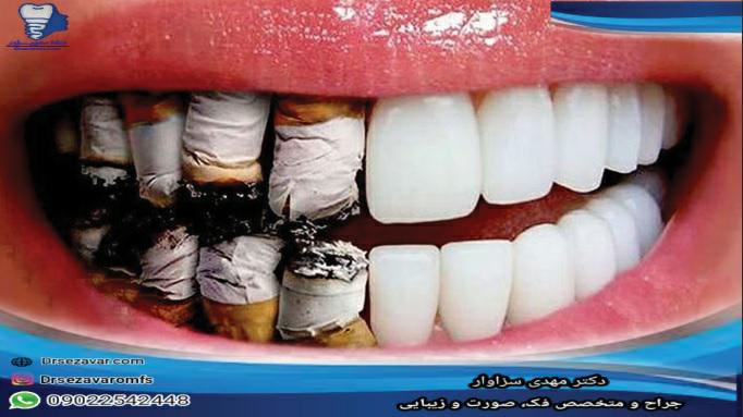 علت تأثیر سیگار بر ایمپلنتهای دندانی چیست؟
