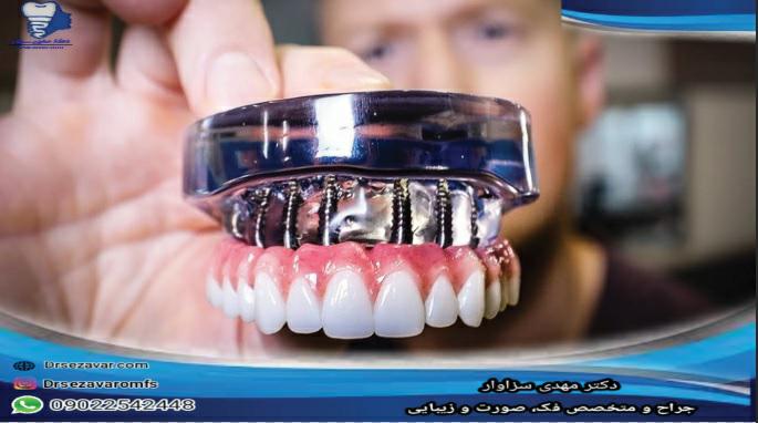 مقایسه دندان مصنوعی و ایمپلنت