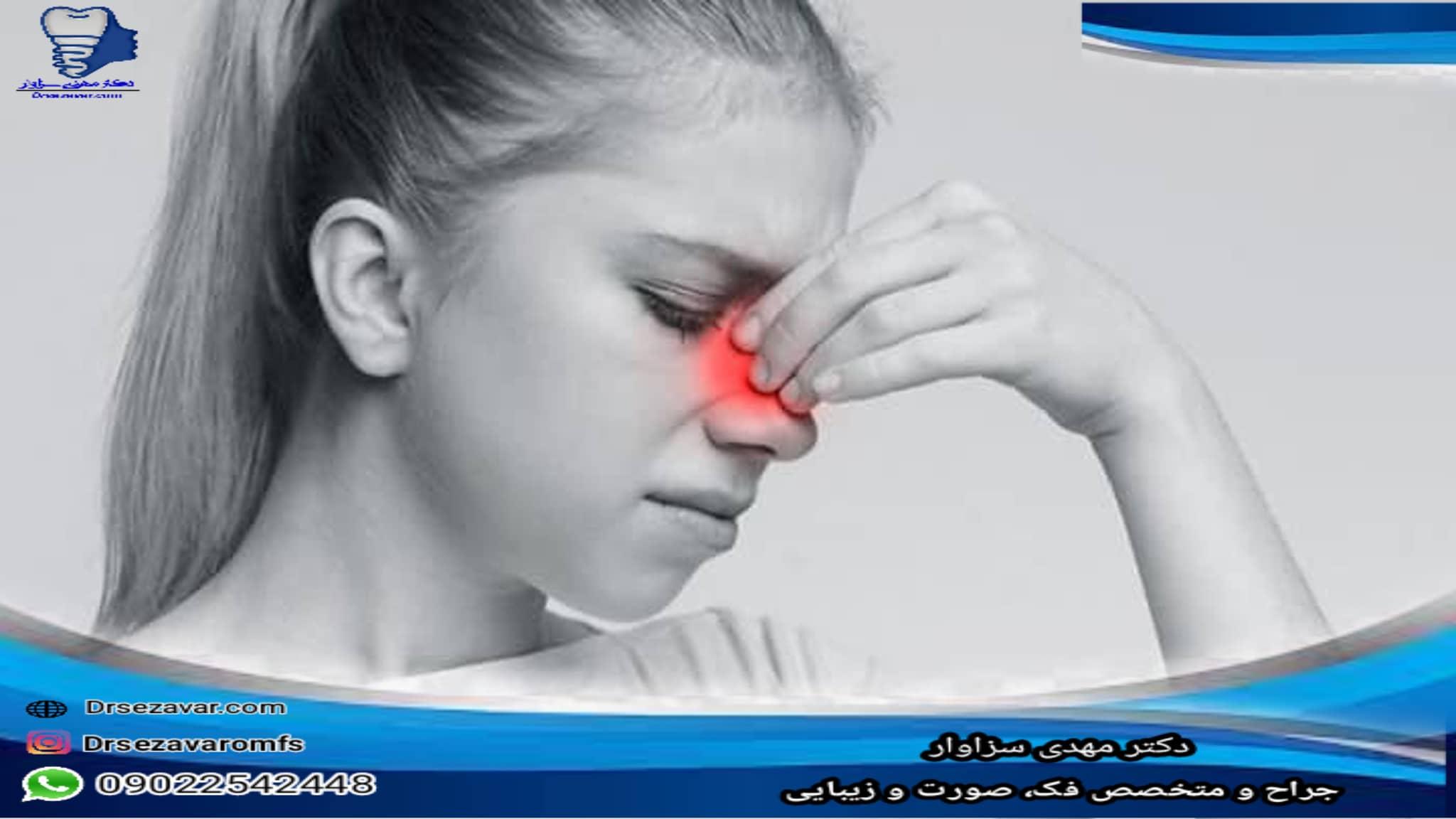 بهترین راه برای درمان پولیپ بینی