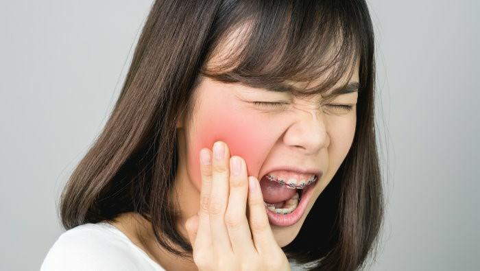 ابتلا به اختلالات مفصل گیجگاهی فکی (TMD یا TMJD)