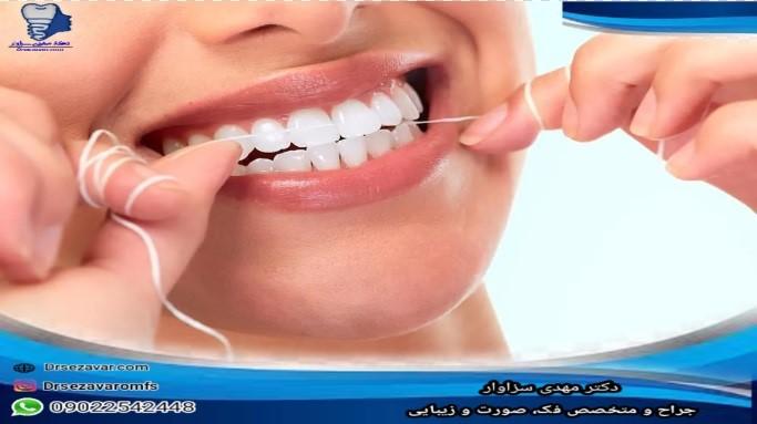 استفاده روزانه از نخ دندان برای ایمپلنت