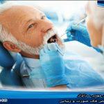 ایمپلنت دندان برای بیماران سرطانی