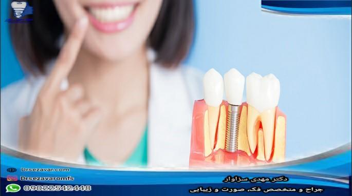 محدودیت های ایمپلنت دندان