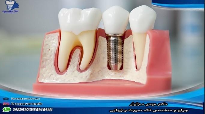مراقبت از دندان ایمپلنت در ساعات اولیه بعد از کاشت