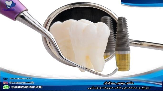 مراقبت از دندان ایمپلنت