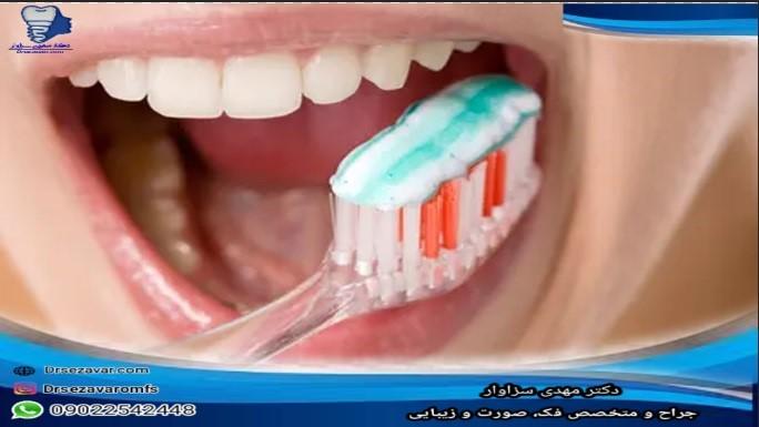 مسواک مناسب برای ایمپلنت دندانی