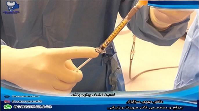پزشک معتبر برای تزریق چربی
