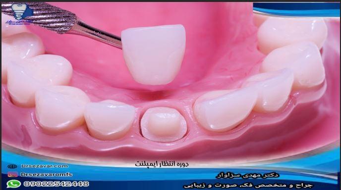 دوره انتظار ایمپلنت دندان